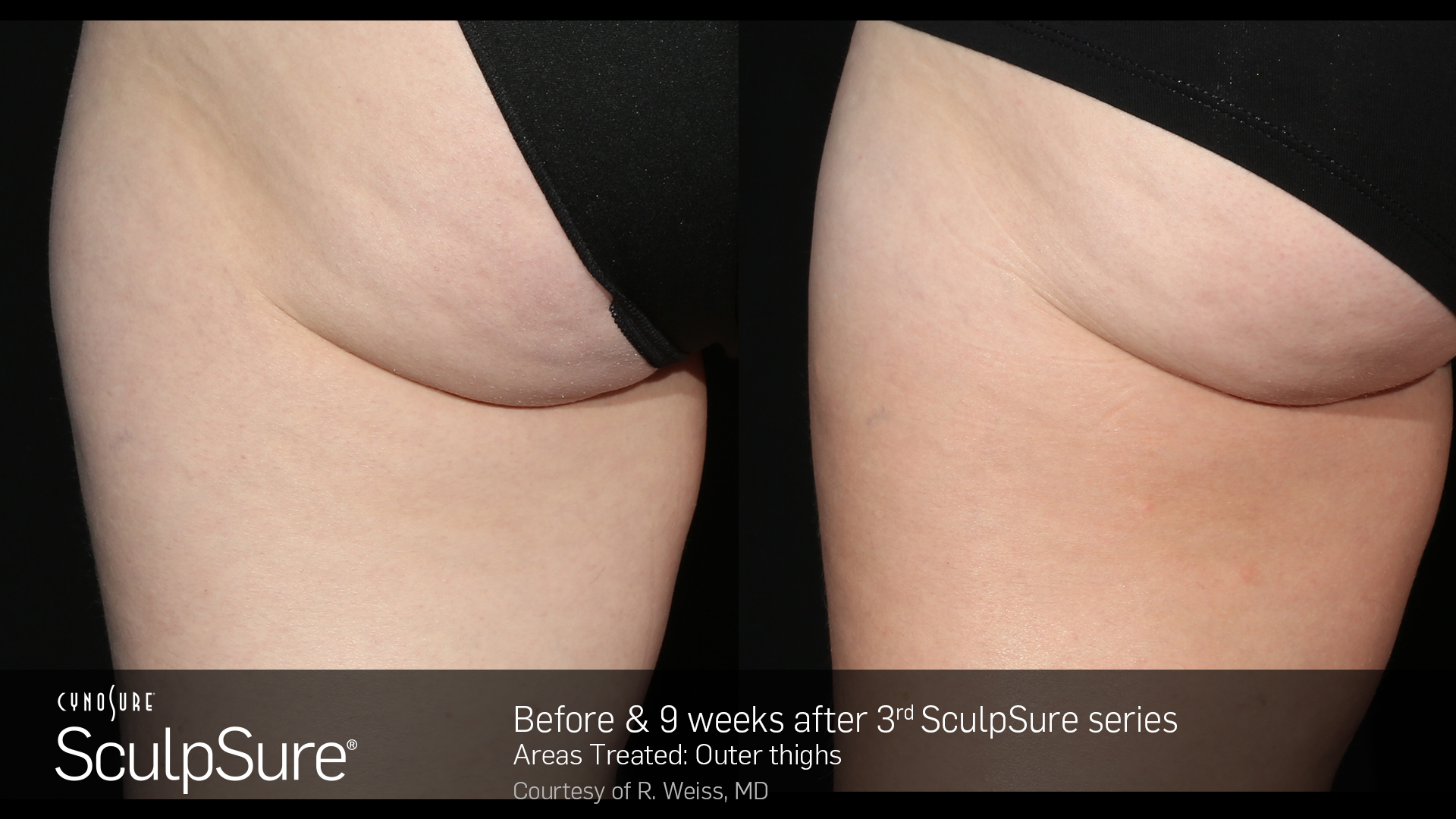 SculpSure Washington DC
