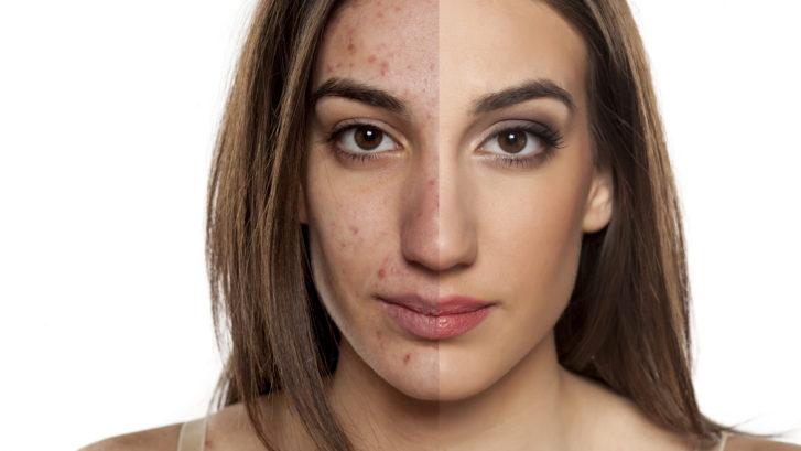 Acne Treatments Waldorf