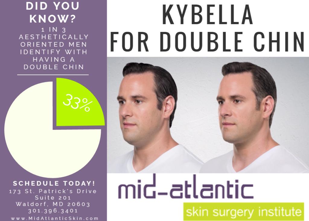 kybella-social-media