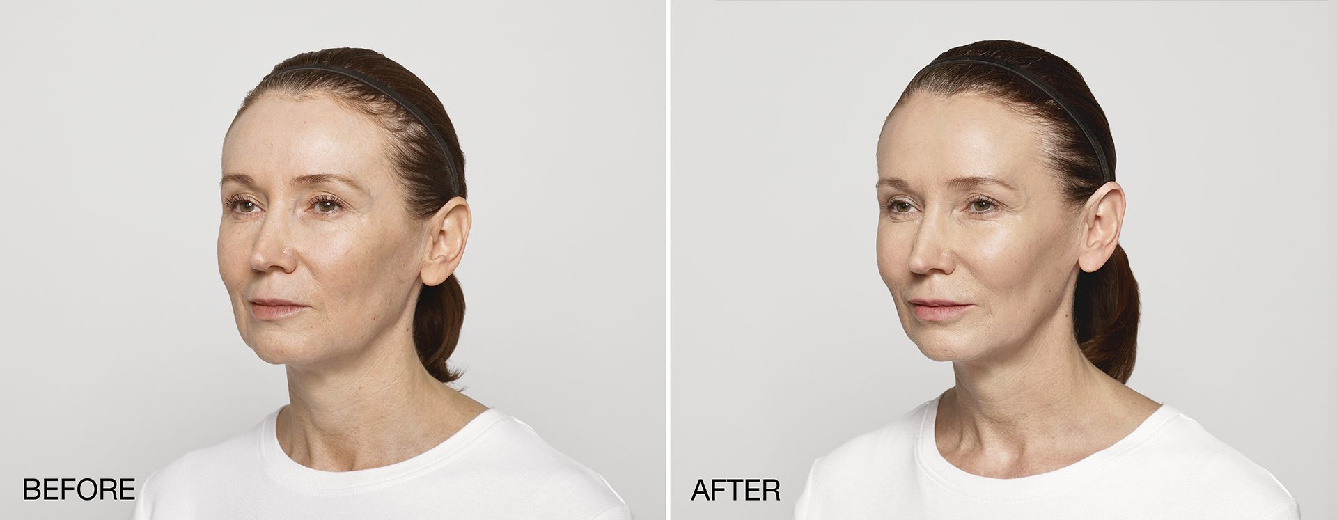 restylane-lyft-carol-before-and-after-4