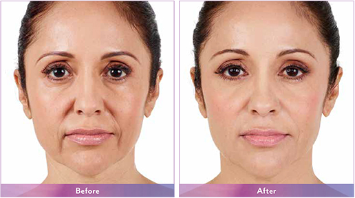 Juvederm XC Maryland