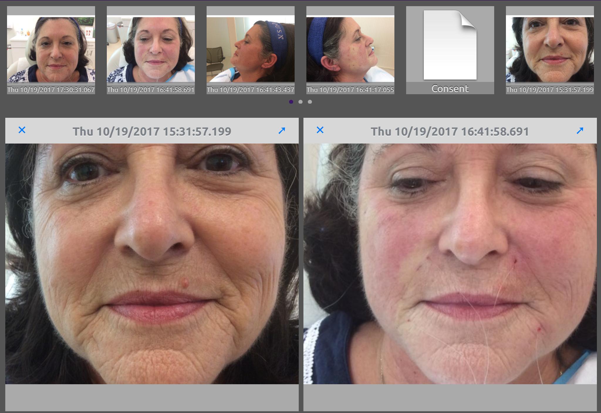 Silhouette InstaLift - Mid-Atlantic Skin Surgery Institute