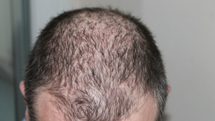 hair growth maryland