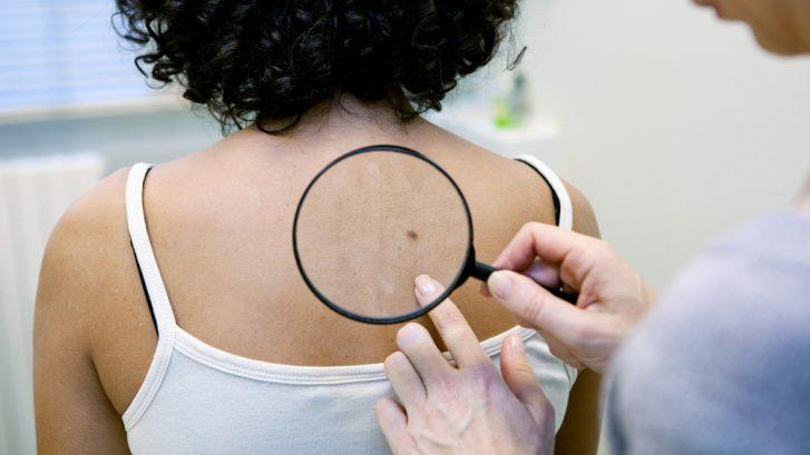 non-melanoma skin cancers waldorf
