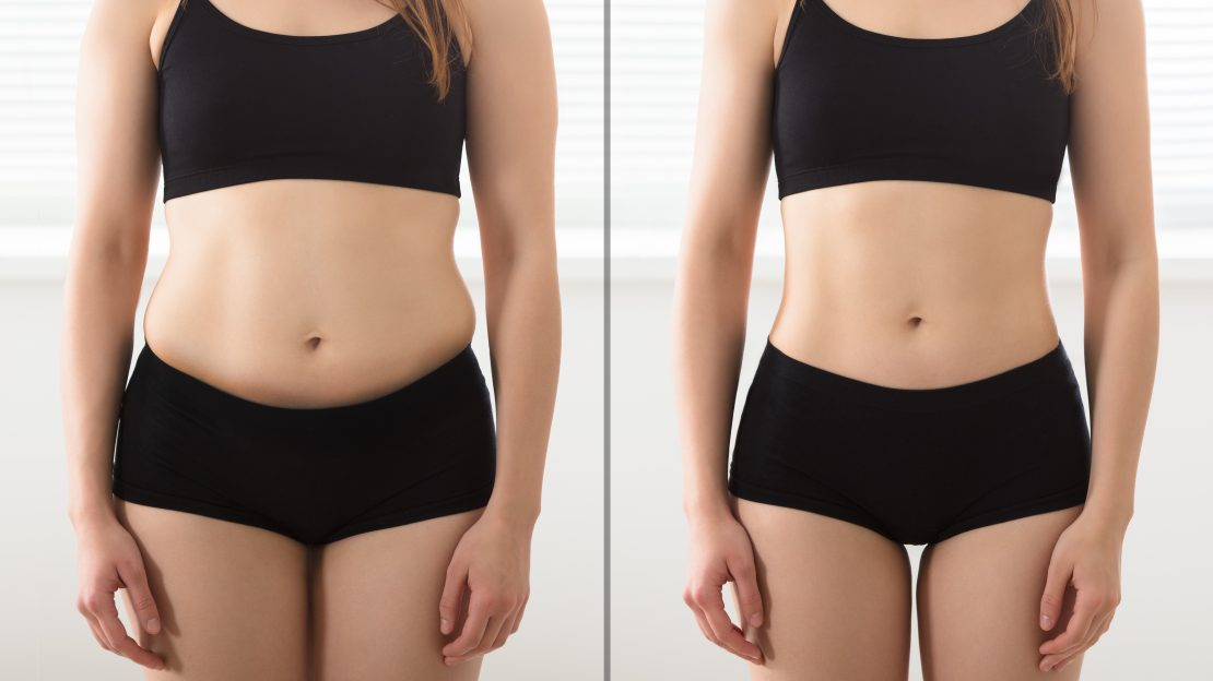 laser liposuction southern maryland