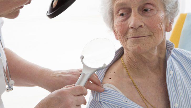skin cancer screening maryland