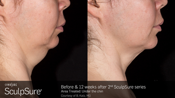 sculpsure maryland
