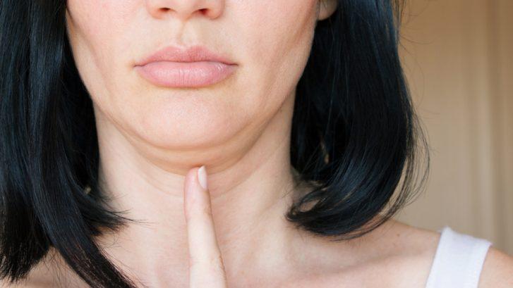 double chin treatment maryland