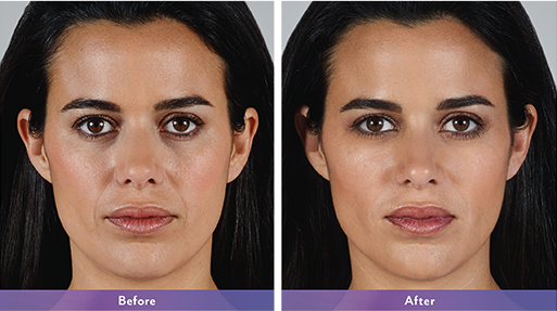 Vollure Juvederm Maryland