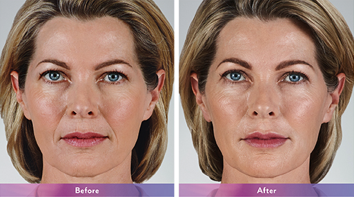Voluma XC Juvederm Maryland