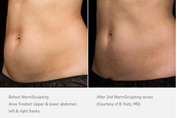 non-surgical liposuction waldorf