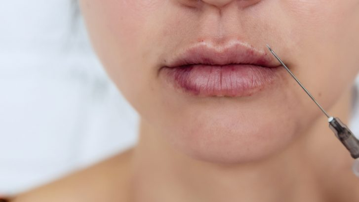 How Long Does Lip Filler Swelling Last?