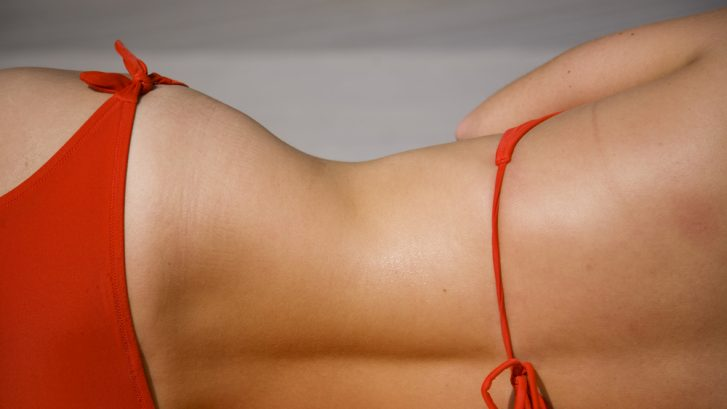 How Expensive is Liposuction?