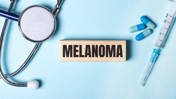 Do I Have Melanoma?