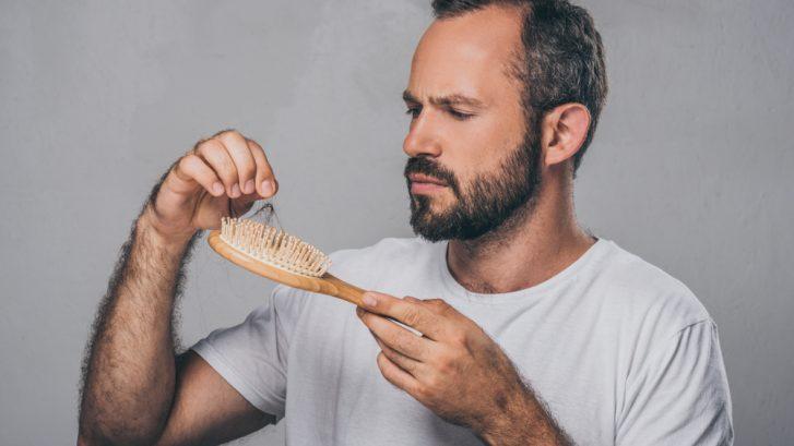 Hair Loss for Men